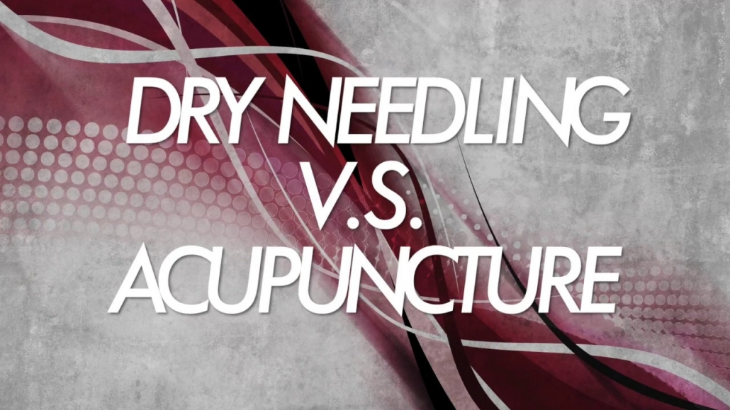 Acupuncture vs Dry Needling- What's the difference ...